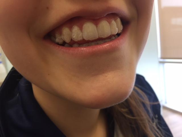 la moitié 2019 meilleures ventes recherche d'officiel La technique Invisalign   Dre Isabelle Baillargeon Orthodontiste